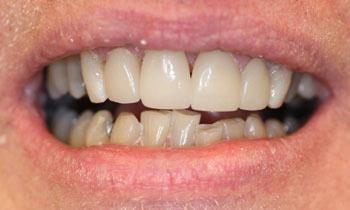 Cosmetic Restoration Using Veneers, Crowns and Teeth Whitening