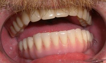 Cosmetic-Restoration-Using-Dental-Implants-After-Image