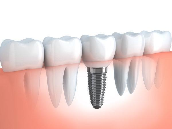 Dental Implant Care | Chesterfield MO Dentist