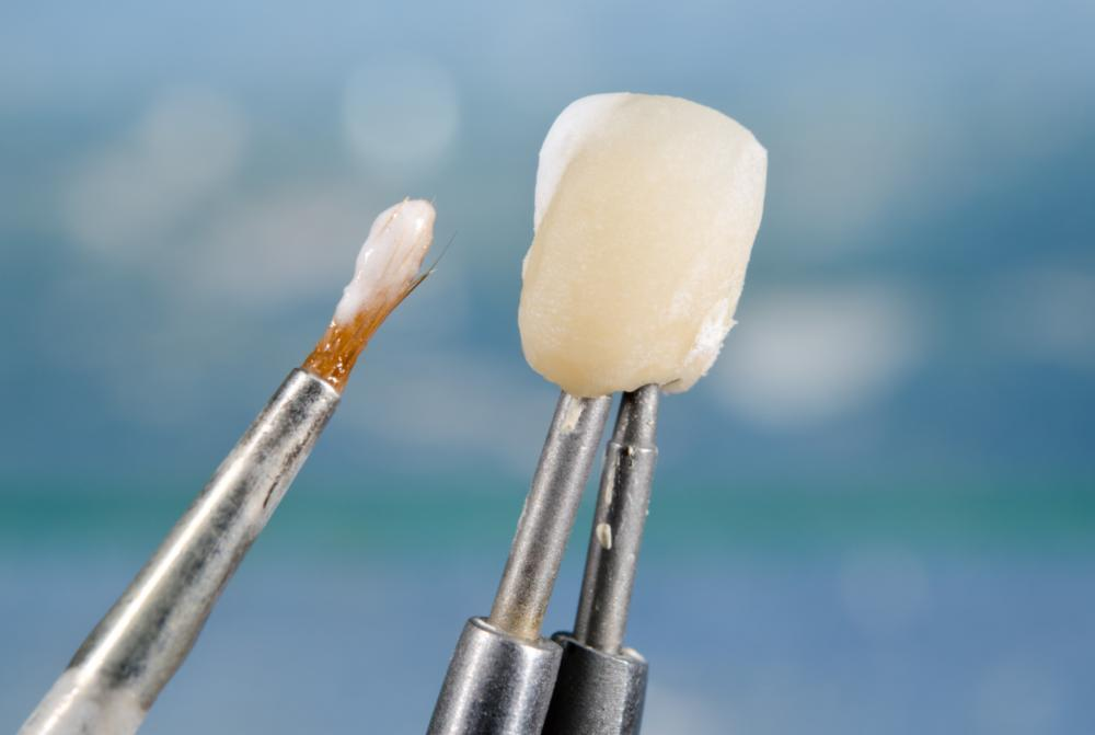 Dental crown | Chesterfield MO Dentist