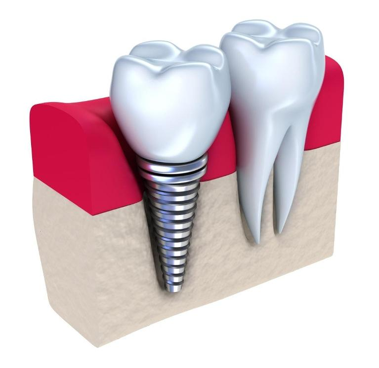 Dental Implant Diagram | Chesterfield MO