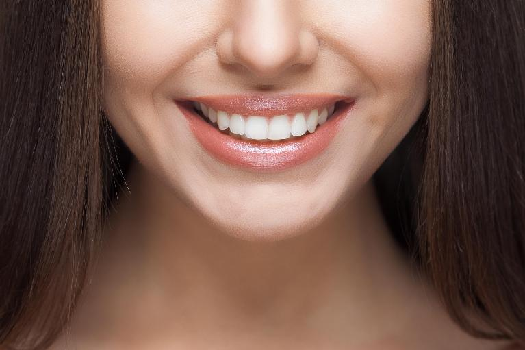woman smiling closeup | chesterfield mo dentist