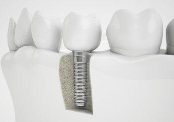 Dental Implant | Chesterfield MO Dentist
