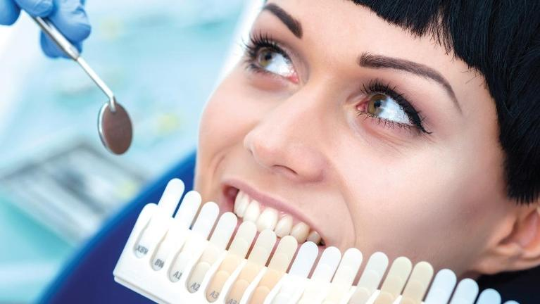 Woman starting the professional teeth whitening process in Chesterfield