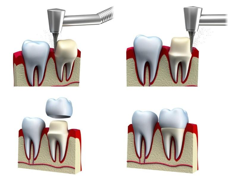 Dental Crowns Procedure | Chesterfield MO