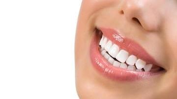 White Smile | Chesterfield MO Whitening