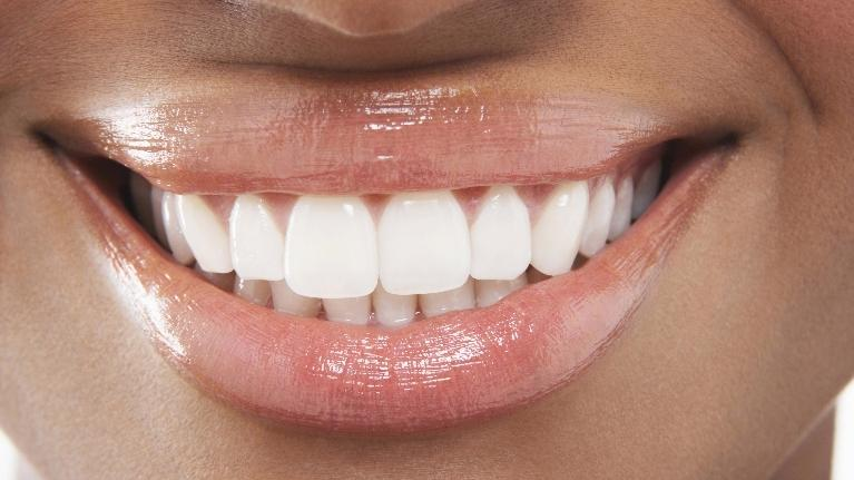 Teeth Whitening | Chesterfield MO Dentist