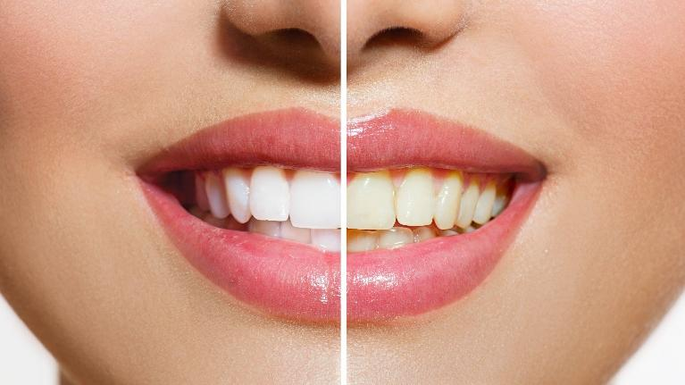 Teeth Whitening Results | Dentist Chesterfield MO