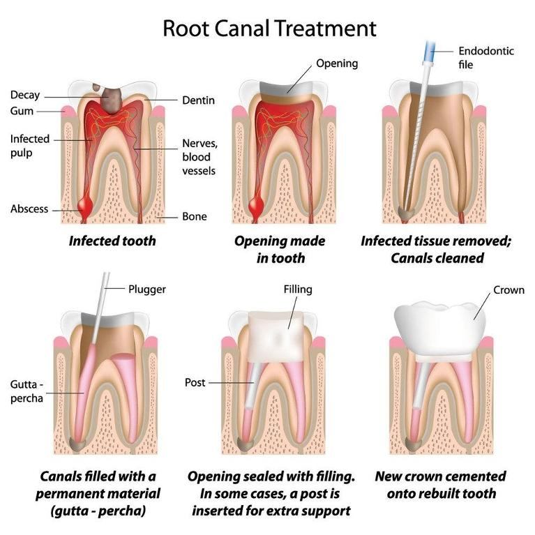 Root Canal Treatment | Chesterfield MO