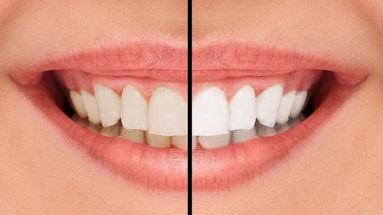 Professional Teeth Whitening | Chesterfield MO Dentist