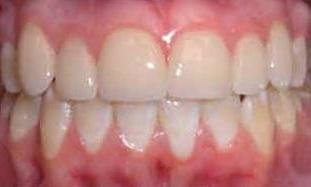 Cosmetic Restoration Using Veneers