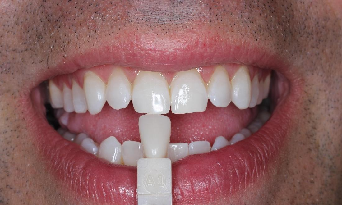KöR teeth whitening After Images | Whitening Dentist