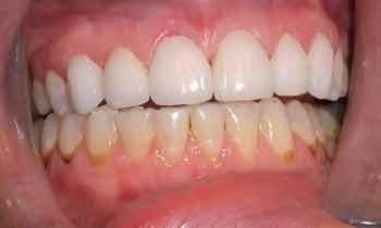Cosmetic-Restoration-Using-Veneers-and-Crowns-After-Image