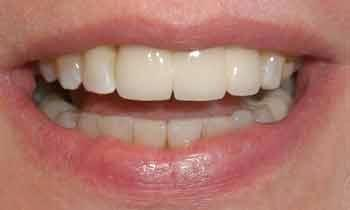 Upper-Veneers-After-Image
