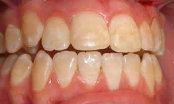 Cosmetic-Restoration-Using-Veneers-Before-Image