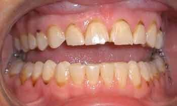 Cosmetic-Restoration-Using-Veneers-and-Crowns-Before-Image
