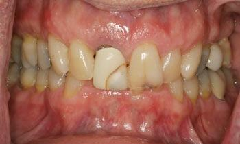 Cosmetic-Restoration-Using-Veneers-Crowns-and-Teeth-Whitening-Before-Image