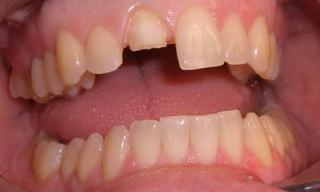 Cracked-Front-Tooth-Fixed-With-A-Dental-Crown-Before-Image