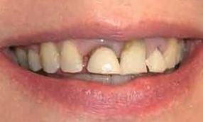 Upper-Veneers-Before-Image